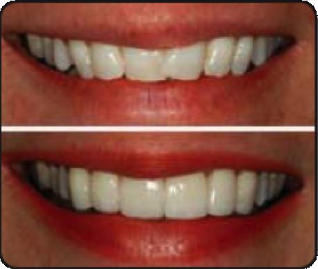 Before & after veneers