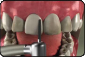 Preparing the teeth