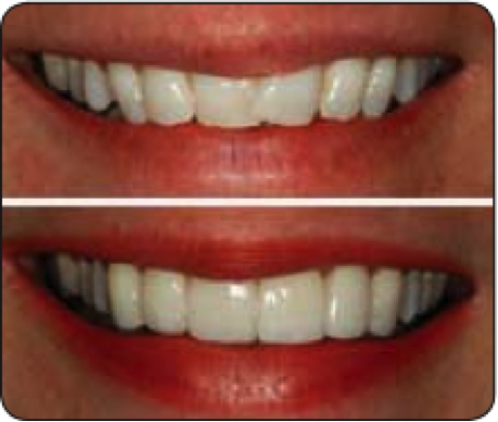 Bridge Dental Veneers