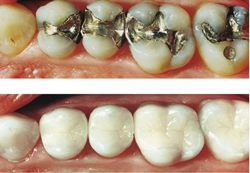 Composite-filling-replacements