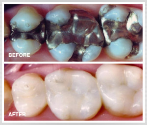 composite-fillings-chattanooga-tn